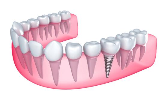 Rodeo-Implants2-560