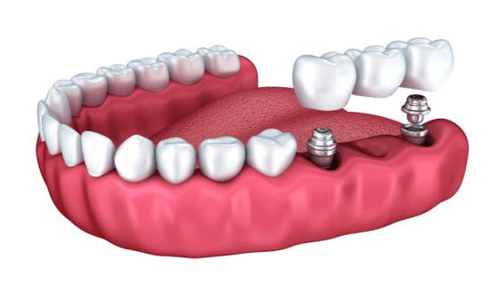 Rodeo-Implants3-