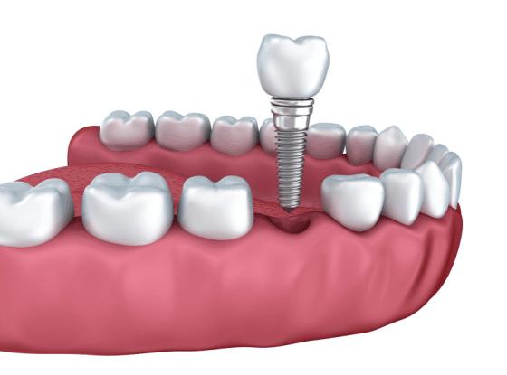 Rodeo-Implantsnew